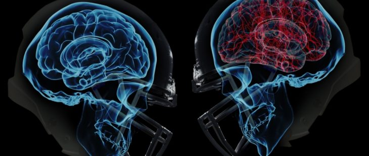Youth Flag Football Concussions